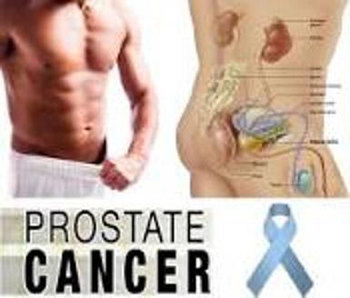 PROSTATE CANCER VIDEO